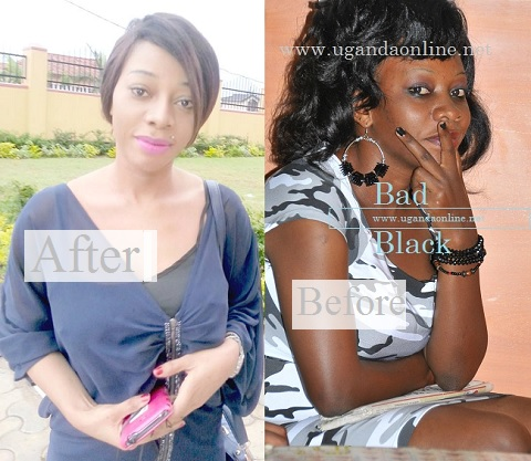 Bad Black ''before'' and ''after'' skin bleaching