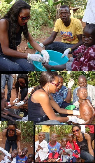 Miss Uganda helping a family with jiggers in Luagzi